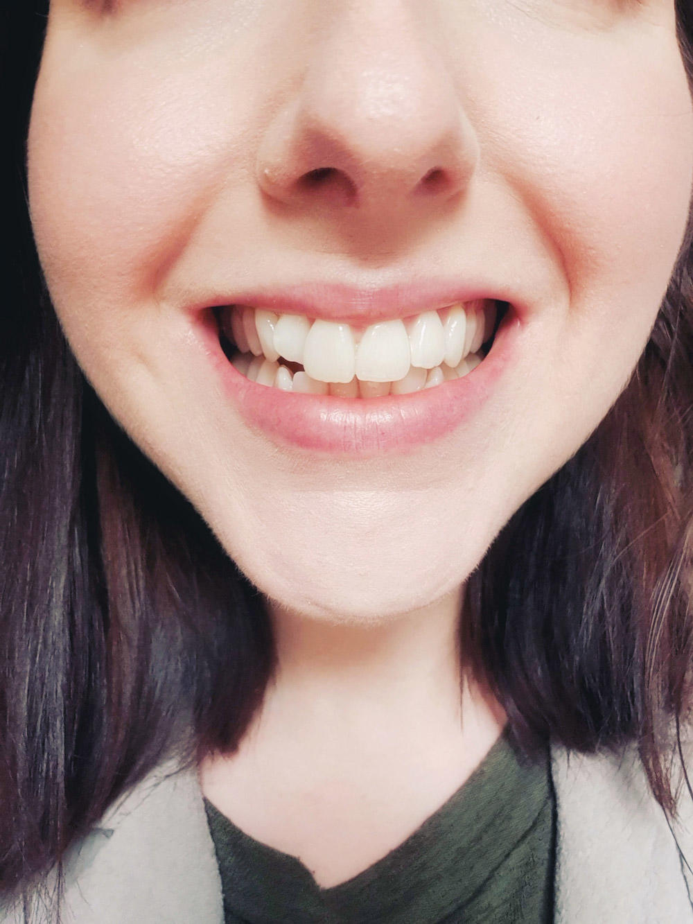 Six Month Smiles Review - Before Braces